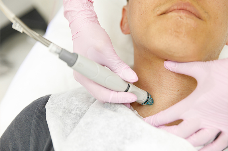 HYDRAFACIAL MD® FOR MEN